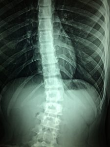 Image of an X-ray of a spine. The X-ray shows a damaged spine