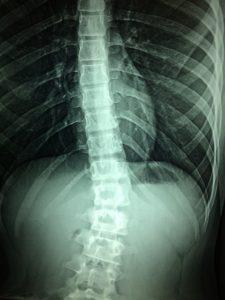 Image of an X-ray of a spine. The X-ray shows a damaged spine